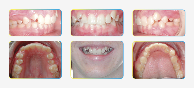 Initial Orthodontic Photos