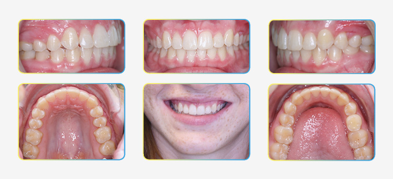 Final Orthodontic Photos