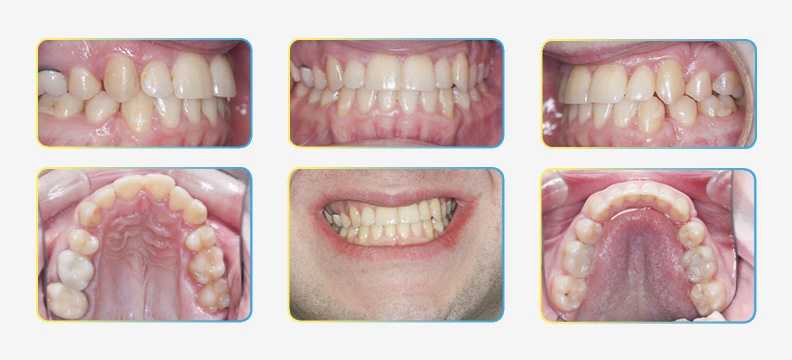 final photos after orthodontic extraction treatment