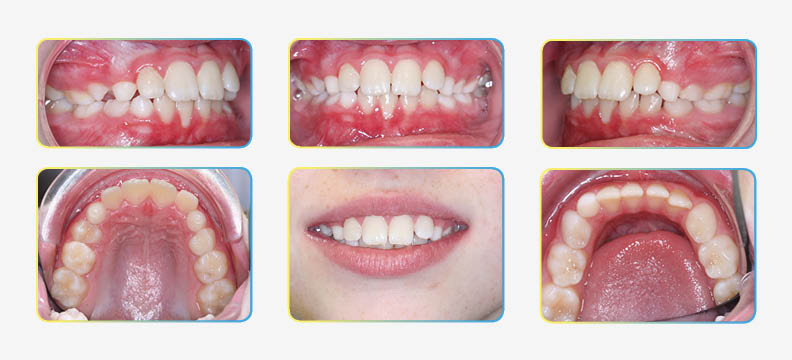 first orthodontic visit photos