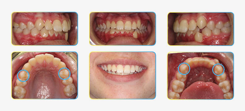 Orthodontic photos before extractions