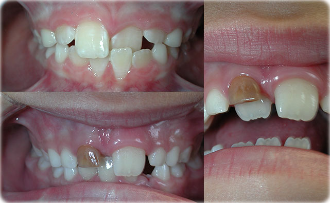 common orthodontic problems  clinical and radiographic